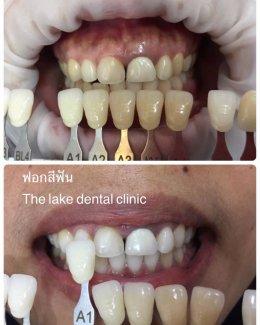 ฟอกสีฟัน ฟอกฟันขาว ขอนแก่น