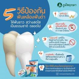 5 วิธีป้องกัน ฟันเหลืองฟันดำ