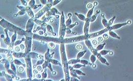 ไตรโคเดอร์มา (Trihoderma) คืออะไร