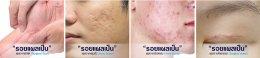 รักษารอยแผลเป็นด้วยนวัตกรรม Picosecond Laser หมดปัญหาผิวไม่เรียบ ไม่สวยจากรอยแผลเป็น หลุมสิว หรือรอยแผลทุกชนิด