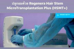 ดูแลผมร่วง ผมบางด้วย Regenera Hair Stem Cell Therapy !!