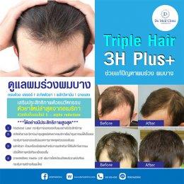 Triple Hair 3H Plus ดูแลผมร่วงผมบาง ครบด้วย เลเซอร์ l สะกิดตัวยา | ผลักวิตามิน | ฉายแสง