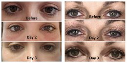 """แก้ปัญหาหนังตาตก ตาสองชั้นหลบในโดยไม่ต้องผ่าตัดด้วย """"Plasma eyelift"""" Plasma eyelift: Non surgical double eyes lit (blepharoplasty)"""