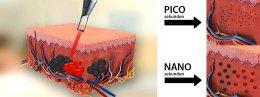 PicoLaser Melasma Treatment Program โปรแกรมดูแลฝ้าครบวงจร