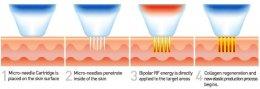 Fractional Radio Frequency RF คืออะไร มีกี่ชนิด แตกต่างกันอย่างไร ?