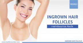 Permanent hair removal program to treat ingrown hairs.