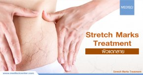 Stretch Marks Program