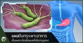 แบคทีเรีย H.Pylori ก่อโรคกระเพาะอาหาร