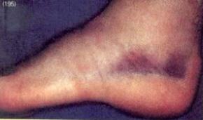 การปฐมพยาบาลบาดแผลประเภทปิด ( First Aid for Closed Wound )