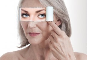 Non-Surgical Blepharoplasty with Plasma eye lift