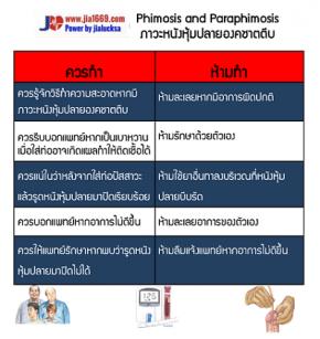 Phimosis and Paraphimosis