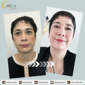 Filler+Botox และ Deep Mela Klear