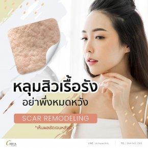 Scar Remodeling