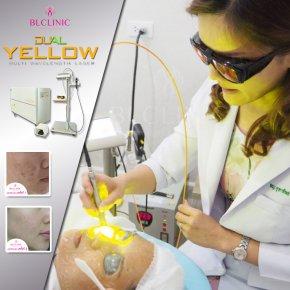 Dual Yellow  (US FDA) เลเซอร์ 2 สีที่ดีที่สุด  รอยแดง รอยสิว ผิว เห็นผลตั้งแต่ครั้งแรก!!