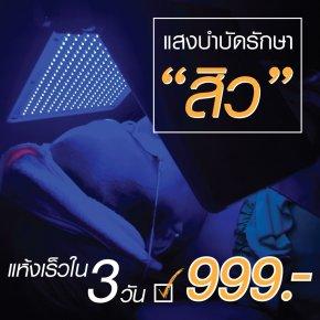 ฉายแสงรักษาสิว ครั้งละ 999 บาท
