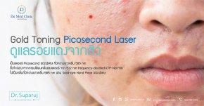 Gold Toning Picosecond Laser ดูแลรอยแดงจากสิว