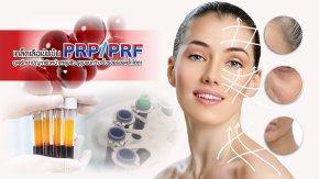 ดูแลรักษาปัญหาผิวหน้า หลุมสิว รูขุมขนกว้าง ริ้วรอยรอยคล้ำใต้ตาด้วย เกล็ดเลือเข้มข้น ชนิดพิเศษ PRP/PRF