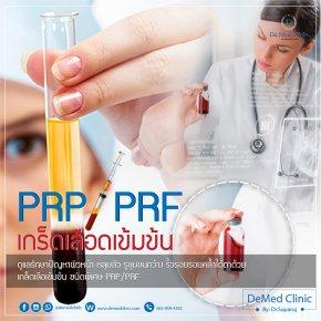 นวัตกรรมการฉีดเกล็ดเลือดเพื่อปลูกผมหรือ PRP or Platelet Rich Plasma (พลาสมาที่มีเกล็ดเลือดเข้มข้น)