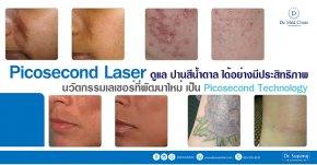 Picosecond Laser ดูแล ปานสีน้ำตาล ได้อย่างมีประสิทธิภาพ นวัตกรรมเลเซอร์ที่พัฒนาใหม่ เป็น Picosecond Technology