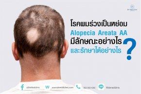 โรคผมร่วงเป็นหย่อม Alopecia Areata AA มีลักษณะอย่างไรและรักษาได้อย่างไร ?