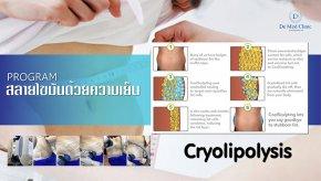 สลายไขมันด้วยความเย็น Cryolipolysis