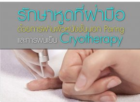 รักษาหูดที่ฝ่ามือด้วยการฝานผิวหนังชั้นนอก Paring และการพ่นเย็น Cryotherapy