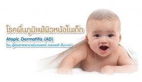 โรคผื่นภูมิแพ้ผิวหนังในเด็ก Atopic Dermatitis (AD) โดย ผู้ช่วยศาสตราจารย์นายแพทย์ เทอดพงศ์ เต็มภาคย์