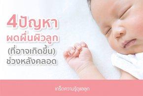 4 ปัญหาผดผื่นผิวลูก (ที่อาจเกิดขึ้น) ช่วงหลังคลอด