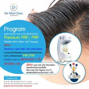 ดูแลรักษาผมร่วง ผมบาง ด้วยเกล็ดเลือดเข้มข้น Premium PRF / PRP Platelet-Rich Fibrin Cell Therapy พิเศษ Premium Laser Hair Cell Stimulation