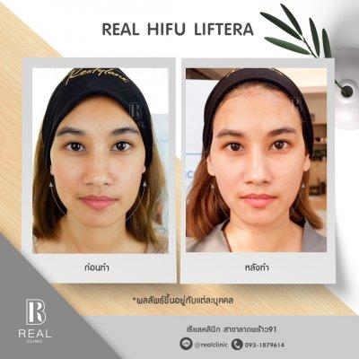 Real HIFU Liftera