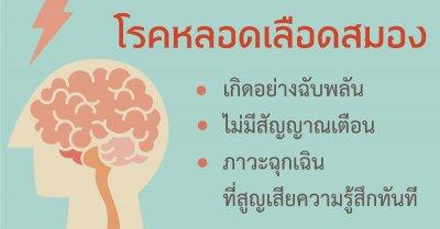 โรคหลอดเลือดสมอง