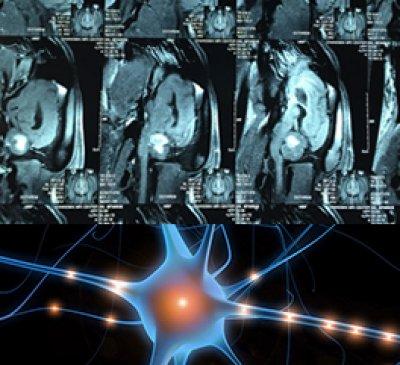 ศูนย์การแพทย์เฉพาะด้านระบบประสาท