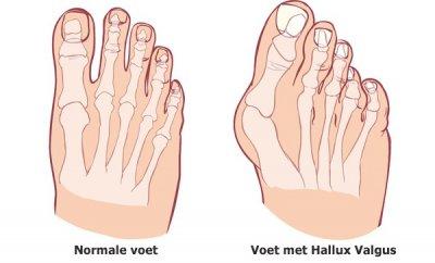 นิ้วโป้งเท้าเก (Hallux Valgus) สาเหตุและวิธีแก้ไข