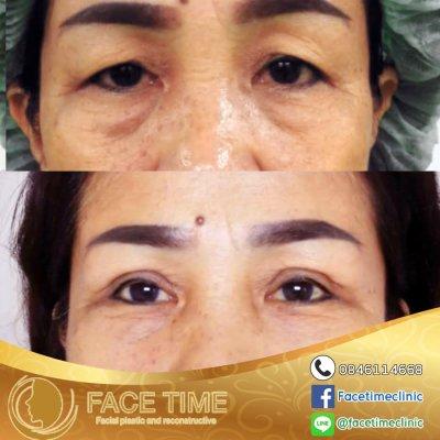 การผ่าตัดชั้นตา / รอบดวงตา (Blepharoplasty)
