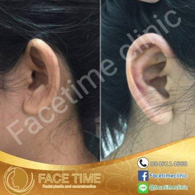 การผ่าตัดบริเวณหู (Cosmetic Surgery For Ears)