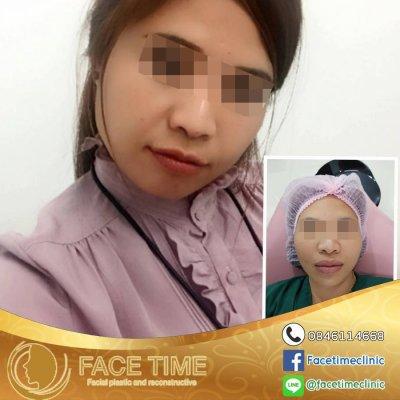 การผ่าตัดริมฝีปาก (Cosmetic Surgery of the Lips)