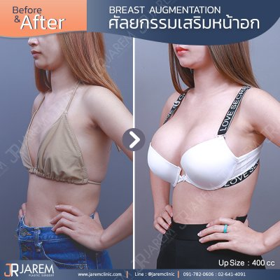 Review breast augmentation