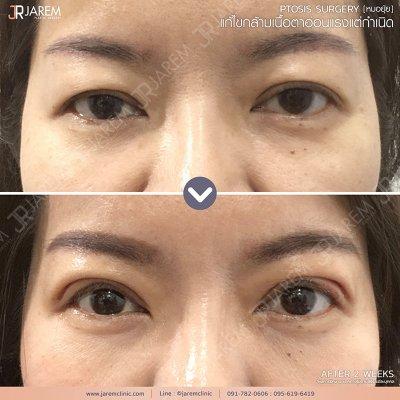 กล้ามเนื้อตาอ่อนแรง ศัลยกรรมตา