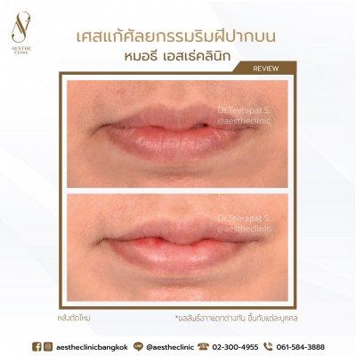 ศัลยกรรมปาก