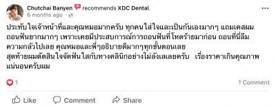 xdc review