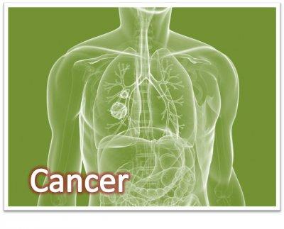 รักษามะเร็งด้วย