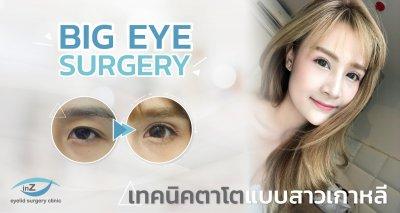 คนตาเล็ก ทำให้ตาโตขึ้นด้วย Big eye surgery แบบสาวเกาหลี