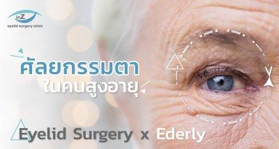 การทำศัลยกรรมตา ในคนสูงอายุ