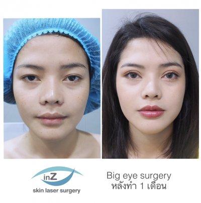 ศัลยกรรมตาทำให้ใบหน้าอ่อนวัย