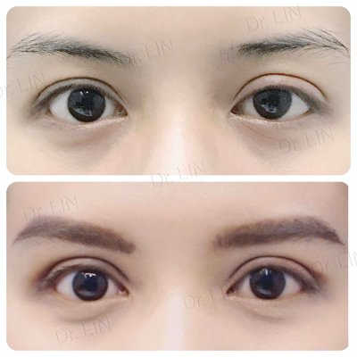Unequal Eyelid Crease