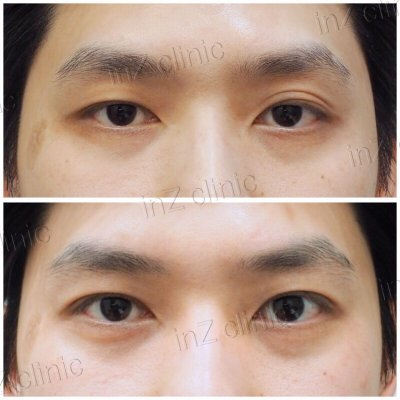 Male Blepharoplasty