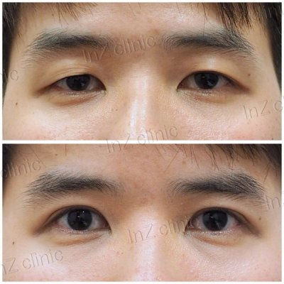 Male Blepharoplasty