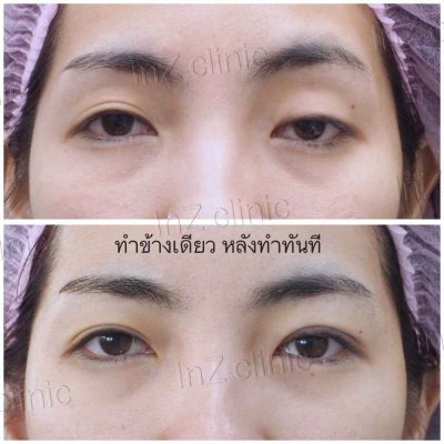 Small-Incision Blepharoplasty