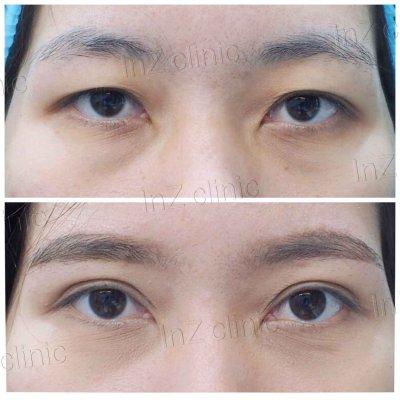 Open Blepharoplasty