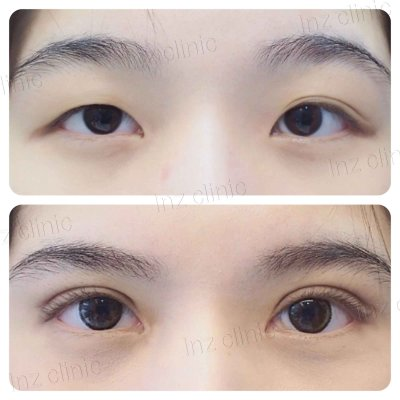 Open Blepharoplasty